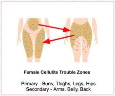 Female Cellulite Trouble Zones image