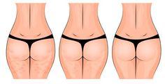 La flacidez en las caderas, piernas y muslos puede deberse a varias condiciones de salud, pero la buena noticia es que se puede tratar con una crema casera