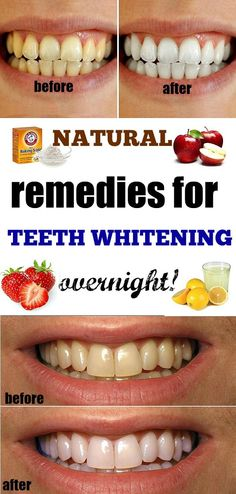 Homemade natural remedies for Teeth Whitening - Instant Beautyify!