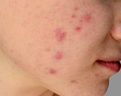 Acne can appear in many forms including comedones, pimples, cysts and nodules. Treatment depends on the type of acne and its severity. Acne Skin, Acne Prone Skin, Acne Scars, Oily Skin, Sensitive Skin, Acne Breakout, Skin Tag Removal, Acne Remedies, Natural Remedies