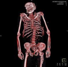 Tecnicos Radiologos: La Autopsia Virtual aplicada a la Radiología Médica Forense
