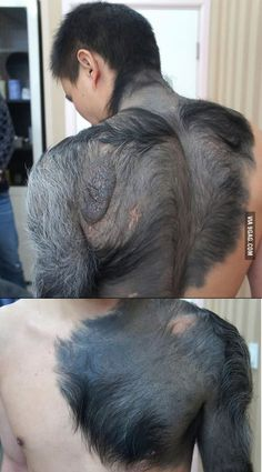 Wolf Man Birthmark More memes, funny videos and pics on Creepy Old Photos, Cool Photos, Scar Tattoo, Birthmark Tattoo, Japanese Snake Tattoo, Dark Skin Models, Human Oddities, Creature Feature, Cover Up Tattoos