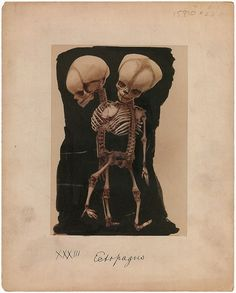 Ectopagus (laterally conjoined) dicephalus dibrachius tripus twins.    From Part IV of the collection of pictures of congenital abnormalities that form the basis of the four-volume atlas Human Monstrosities by Barton Cooke Hirst (1861-1935) and George Arthur Piersol (1856-1924), published 1891-93.  From Mütter Museum: Historic Medical Photographs  {via liquidnight}