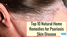 Let's be very clear first, Psoriasis is not contagious…. It's a myth around the world that it can be transmitted from another person. Most of the study reveals it's a skin disease, a common skin dise Home Remedies For Psoriasis, Home Remedies For Acne, Natural Home Remedies, Natural Healing, Scalp Psoriasis Shampoo, Psoriasis Skin, Psoriasis Symptoms, Doterra, Skin Whitening