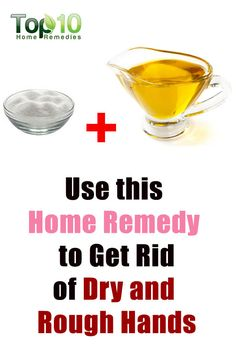 8 Home Remedies for Dry and Rough Hands That are Natural & Cheap Dry Hands Remedy, Dry Skin Remedies, Holistic Remedies, Top 10 Home Remedies, Natural Home Remedies, Rough Hands, Soft Hands, Dry Cracked Hands, Hand Care