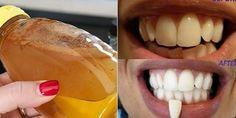 Muitos métodos para deixar os dentes brancos, alguns prometem resultados surpreendentes e incríveis, mas RARAMENTE FUNCIONAM, além de custarem caros, o cliente após o
