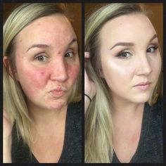 Younique liquid touch foundation works wonders especially those with problematic skin types! Buy here: youniqueproducts.com/cheyenneholmes