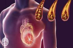 Clogged arteries result from an accumulation of plaque on the inner walls of the arteries. A form of atherosclerosis, this life-threatening condition is the underlying cause of numerous cardiovascu…