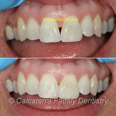 Beating the Black Triangle with Bonding at Calcaterra Family Dentistry in Orange, CT. Dental Photos, Dental Bonding, Family Dentistry, Beats, Triangle