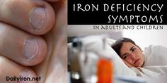Iron deficiency is sometimes difficult to identify because the symptoms are similar to those from a host of other ailments. In fact, it is easy to go for a long time with symptoms thinking that the cause is something else entirely. Symptoms include: Weakness Fatigue Reduced color in the face (a pale look) Heart palpitations […]