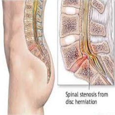 Sciatica is a common painful and debilitating condition that is often misdiagnosed. know the symptoms and causes of the pain in the butt and how to treat it. Spinal Stenosis Treatment, Cervical Spinal Stenosis, Spondylolisthesis, Sciatica Pain Relief, Sciatic Pain, Sciatic Nerve, Chronic Lower Back Pain, Degenerative Disc Disease, Spine Health