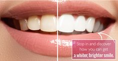 Concerned about how dark your teeth have gotten over the years? Our treatment provides a more youthful and fresh look to your existing smile. Stop in and discover how you can get a whiter, brighter smile. Amazing Friends, Teeth Whitening, Over The Years, Clinic, Dental, Dubai, Nail Polish, Skin Care, Smile