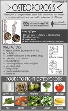 10 Things Putting You At Risk For Osteoporosis And What You Can Do About It... - http://nifyhealth.com/10-things-putting-you-at-risk-for-osteoporosis-and-what-you-can-do-about-it/