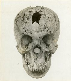 Syphilis of skull - looks like would have lost nose many years before death