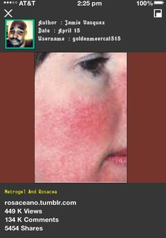 Metrogel And Rosacea 053307 - Rosacea Free Forever.