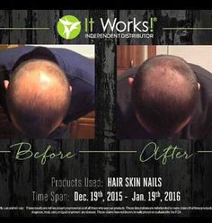 LOOK at these awesome results!! It Works Hair Skin & Nails are for men too!!! Call or text 520-840-8770 http://bodycontouringwrapsonline.com/hair-skinnails