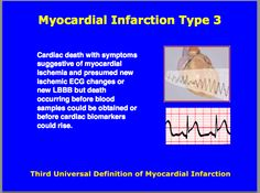 Third universal definition of Myocardial Infarction : Type 3 Cardiovascular Nursing, Myocardial Infarction, Cardiac Nursing, Acute Care, Circulatory System, Nurse Stuff, Cardiology, Student Studying, Care Plans