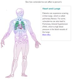Scleroderma (Systemic Sclerosis): How It Affects The Body: Lung Heart
