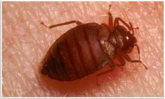 Pests can ruin your houses. Therefore, you need to look for experts who can help you deal with pest infestation and provide effective solutions to cater to your needs. Bed Bugs Treatment, Ruin, Home Improvement, Houses, Homes, Ruins, House, Home Improvements, Computer Case