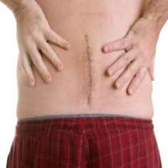 Lifestyle Changes After Back Surgery