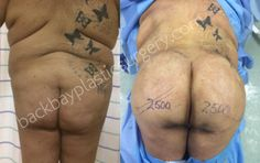 Buttock shaping in a very large black female using fat transplantation.