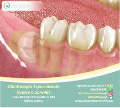 !Exodoncia de dientes impactados¡ Contáctenos y déjanos conocer tu caso.  Agenda tu cita ya: 6571629 - WhatsApp: 3008934528 http://ninacontrerascmf.com/location/