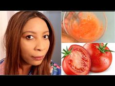 HOW TO GET RID OF DARK SPOTS ON FACE AND NECK, CLEAR ACNE SCARS IN 7 DAYS | Khichi Beauty - YouTube Tomato Face Mask, Dark Spots On Face, Acne Scars, Watermelon, Skin Care, Youtube, Beauty, Living Room