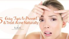 5 Easy Tips to Prevent and Treat Acne Naturally