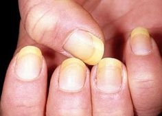 We don't usually associate our fingernails with our health, but there are some fingernail health warnings you should never ignore. Have you ever really stopped to look at your nails? Back when I was younger, and of poor health, my nails always had issues. Toenail Fungus Cure, Toenail Fungus Treatment, Nail Treatment, Fingernail Fungus, Toe Fungus, Yellow Nail Syndrome, Nail Symptoms, Fingernail Health, Nail Infection