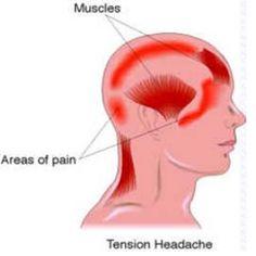 Home Remedies For Tension Headache - Natural Treatments & Cure For Tension Headache | Natural Home Remedies