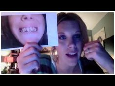 Permanent Dentures Before and After Check these pictures out