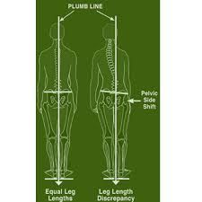 Image result for psoas muscle LLD