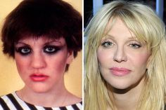 Courtney Love, natural to plastic Celebrity Plastic Surgery, Courtney Love, Celebs, Celebrities, Face And Body, Natural, People, Celebrity, People Illustration