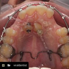 I like this good doctors analogy here - Moving molars in to park them well is easier if you allow a millimetre each side..makes for a much more successful reverse parking! #smileworx #orthodontics #braces #skew #dentists #dental #dentalassistant #goodjob #flc_online