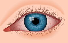Here Are 10 Advice To Help You Heal Dry Eyes! As per the National Health Service, 1 out of 3 individuals encounters dry eyes at . Get Rid Of Stye, Eye Stye Remedies, Cellulite Remedies, Eczema Remedies, Corneal Ulcer, Dry Eyes Causes, Eye Infections, Eye Infection Symptoms, Natural Treatments