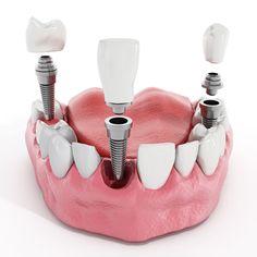 Resultado de imagem para dental implants