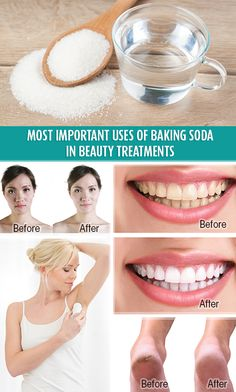 We present you the most important and simple uses of baking soda in beauty treatments