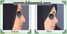 Open rhinoplasty was performed to reduce the nasal length, fill the gap between nose and forehead and increase the nose to lip angle for a more feminine look. For more before and after photos of nose job, visit the website. Rhinoplasty Before And After, Rhinoplasty Surgery, Women Life, Gap, Mens Sunglasses, Fill, Fancy, Cosmetics, Depression