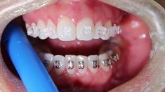 Ortodoncia invisible – Que es, tipos, precio, opiniones