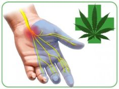 """ArthritisMedicalMarijuana: """"More and more Canadians are accessing medical cannabis as a treatment option for severe arthritis symptoms,"""" explained Society president and CEO Janet Yale. """"We have a duty to the people we serve to ensure that the scientific basis for the use of medical cannabis is clear and appropriate, with patient safety and improved care our foremost priorities."""""""