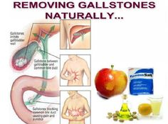 Gallbladder Cleanse - First 5 days, drink 4 glasses green apple juice or eat five apples. Eat normally. On the day, take no dinner. At 6 PM, take a 1 t. of Epsom salt (magnesium sulphate) with a glass of warm water. At 8 PM, repeat. It opens the Gallbladder Cleanse, Liver Cleanse, Gallbladder Attack, Liver Detox, Herbal Remedies, Health Remedies, Home Remedies, Natural Cures, Natural Healing