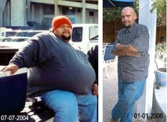 Bariatric Surgery for Weight Loss Success Story - Baylor Scott ...