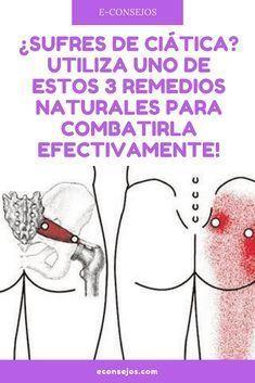 Dolor ciatica remedios