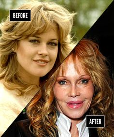 I am a huge Melanie Griffith fan no matter what.  She was so cute before always a total sex goddess.  I don't think herr plastic surgery is over the top for a woman in her early 60's.  Evident rhinoplasty, probably a full face lift, too much filler in the lips (but this can be fixed), possible eye work.  Grow out your eyebrows a bit Melanie.  I think Melanie looks pretty darn good for her age, bad procedures or not, T.