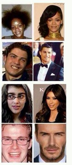 Never think of yourself as ugly EVER.  Proof we are all the same.