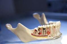 #Root #Canal #Treatment, Dr. Anuerag Singh best dental surgeon in New Delhi, visit us www.dental-delhi.com