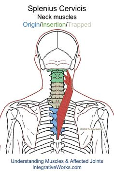 Understanding Trigger Points - Neck-ache headache, eye-ache that creates irritation and anxiety.