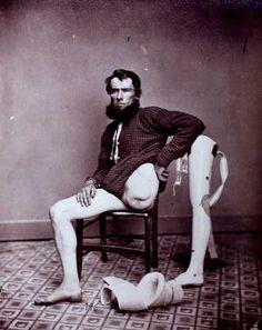 Civil War Amputee, circa 1865.