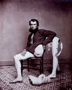 Civil War amputee posing next to his prosthetic leg, circa 1865.