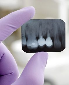 Zahnzusatzversicherungen machen besonders bei jungen Kindern Sinn...
